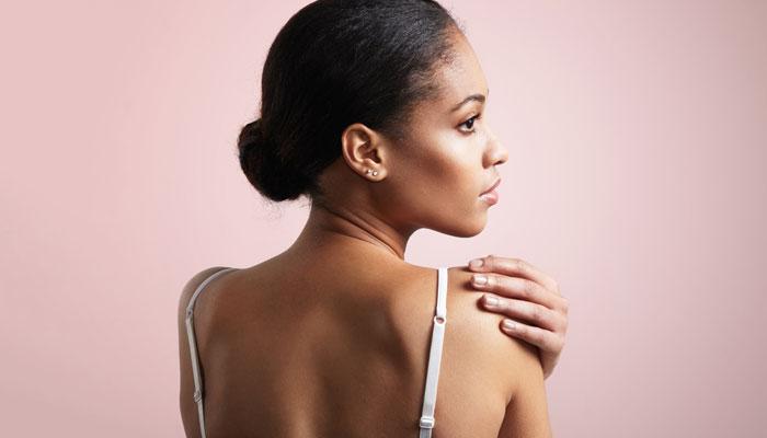 ακμή πλάτης-dermology