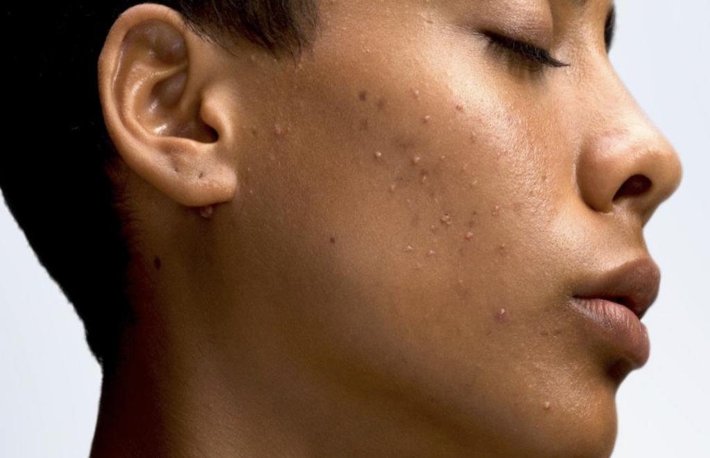 ακμή- θεραπεία-dermology