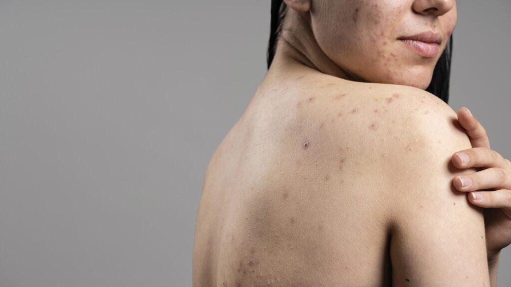Ακμή- ενηλίκων-dermology